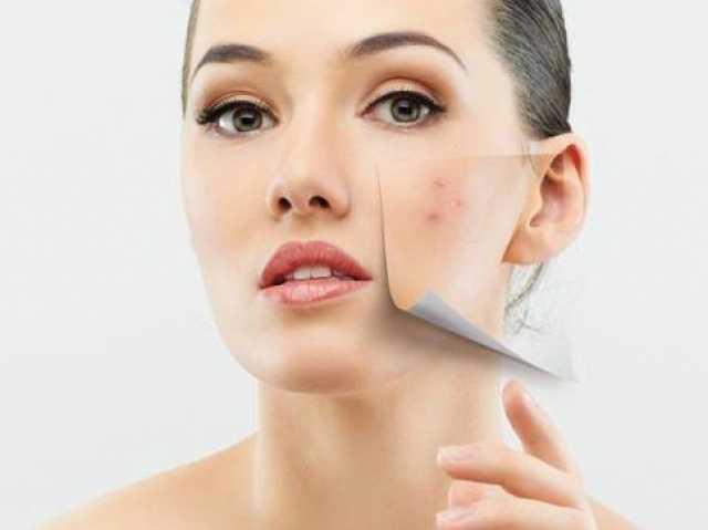Предложение: Атравматическая (химическая) чистка лица