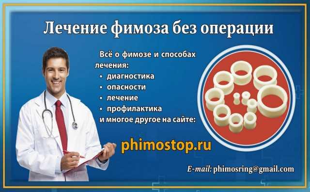 Продам Кольца для лечения фимоза дома