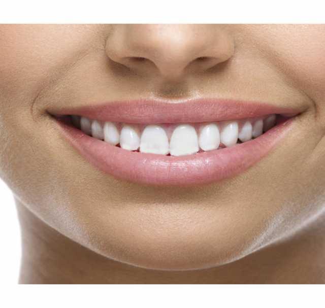 Продам: Съемные виниры Perfect Smile Veneers
