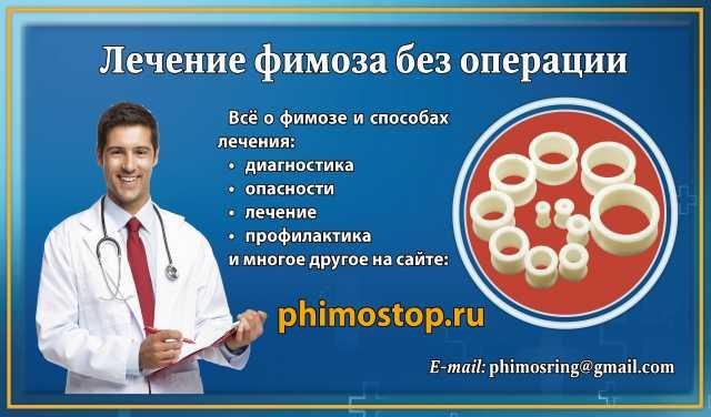 Продам: Кольца для лечения фимоза дома